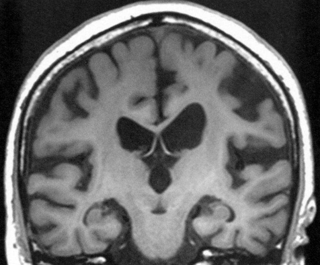 基底 核 症 大脳 皮質 変性